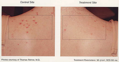 Acne Treatments | BLU-U Therapy for Acne | Upland | Rancho Cucamonga
