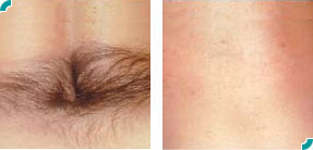 Laser Hair Removal  | Upland | Rancho Cucamonga