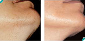 Laser Hair Removal Candela Smoothbeam Laser Candela