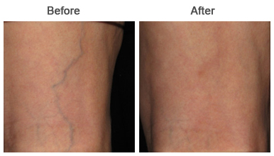 Spider Vein Treatments | Upland | Rancho Cucamonga