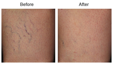 Spider Vein Treatments | Chemical Peels | Upland | Rancho